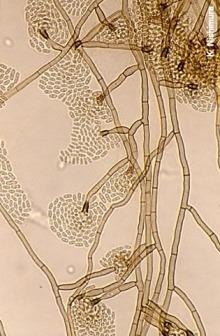 Phialophora_verrucosa_microscopy-8x6.jpg
