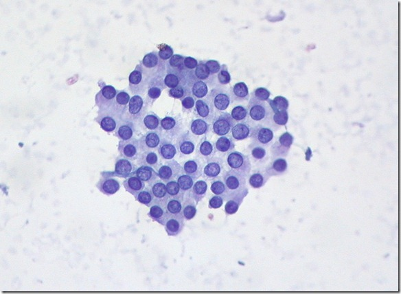 eduthman_papillary ca thyroid