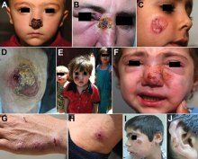 Patterns of leishmaniasis among Syrian refugees in Lebanon, 2012A,B) Lesions impinging and possibly hindering the function of vital sensory organs, including the nose and eyesC,D) Lesions >5 cm.E,F) Lesions disfiguring the faceG,H) Special forms of cutaneous leishmaniasis; shown here is a patient with spread and satellite lesions on the hand and armI,J) Patient with 15 lesions.