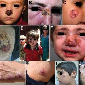 Diseases of Displaced People: CutaneousLeishmaniasis
