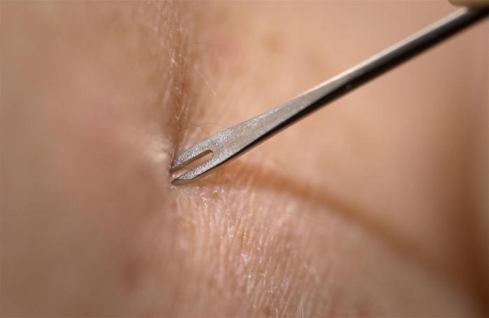 Smallpox_vaccine_injection