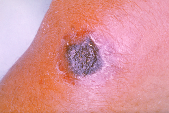 "Anthrax Lesion on Skin (""Anthrax PHIL 2033"" by CDC/ James H. Steele)"
