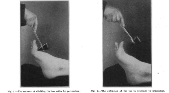 Throckmorton Reflex (JAMA, 1911)