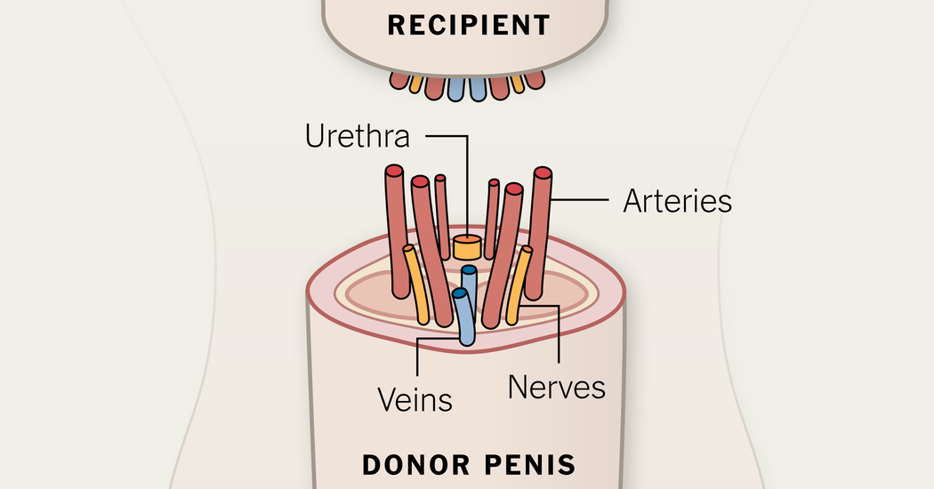 Penis Transplantation (Source: NY Times)