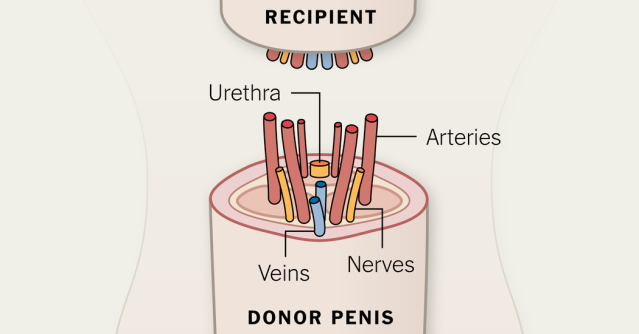Penis Transplantation (Source: NY Times)